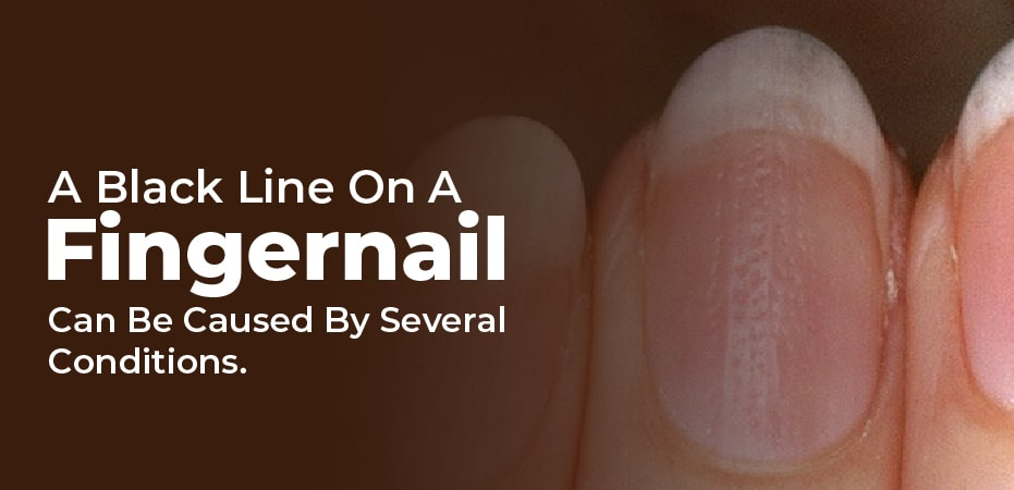 how to get rid of black lines on nails